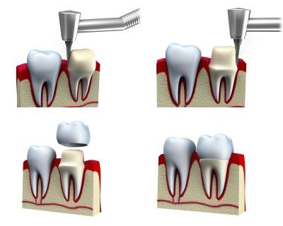Kronen –  kleine Kappe, die auf einen abgeschliffenen Zahn aufgestülpt wird