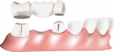 Brücken – Zahnersatz, der eine Zahnlücke schliesst