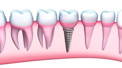 Zahnimplantate – dauerhafte Lösung für Zahnersatz