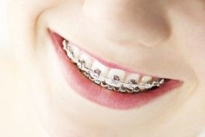 Zahnregulierung